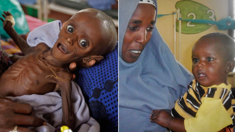 african famine baby makes miracle recovery