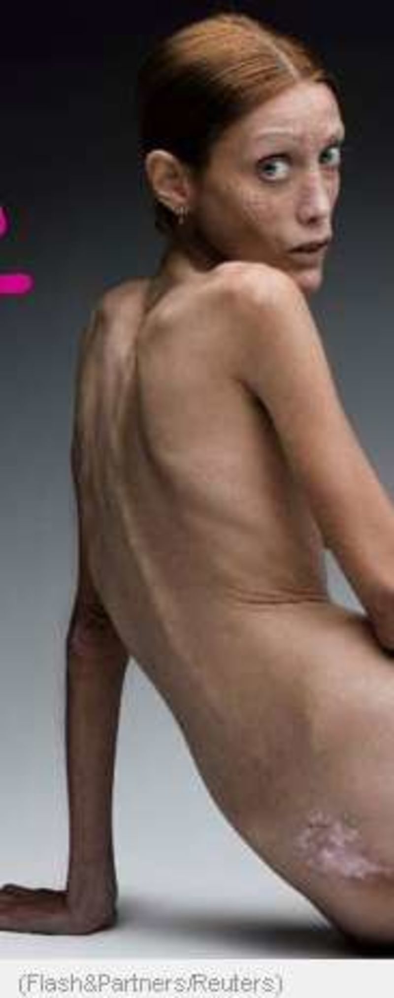 anorexic-man-naked