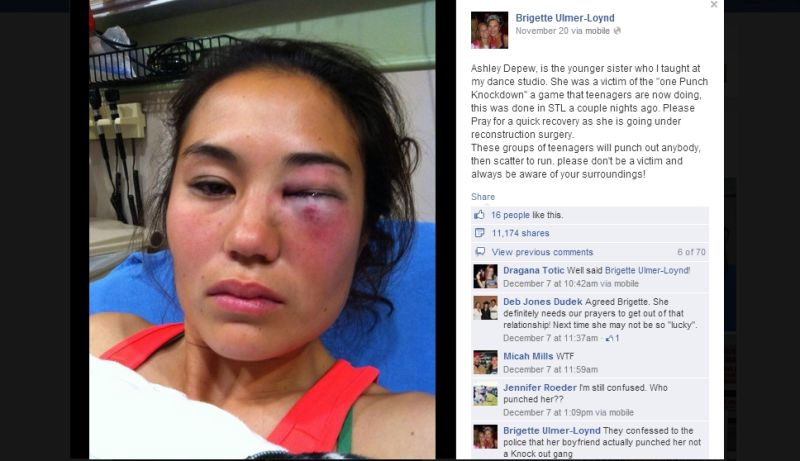alleged victim of knockout game was actually hit by boyfriend