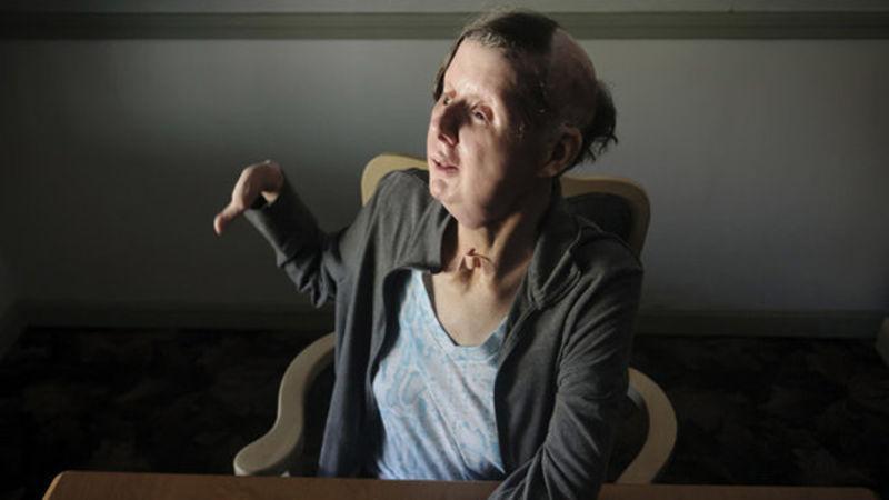 Chimp Attack Victim: I Can Smile Again