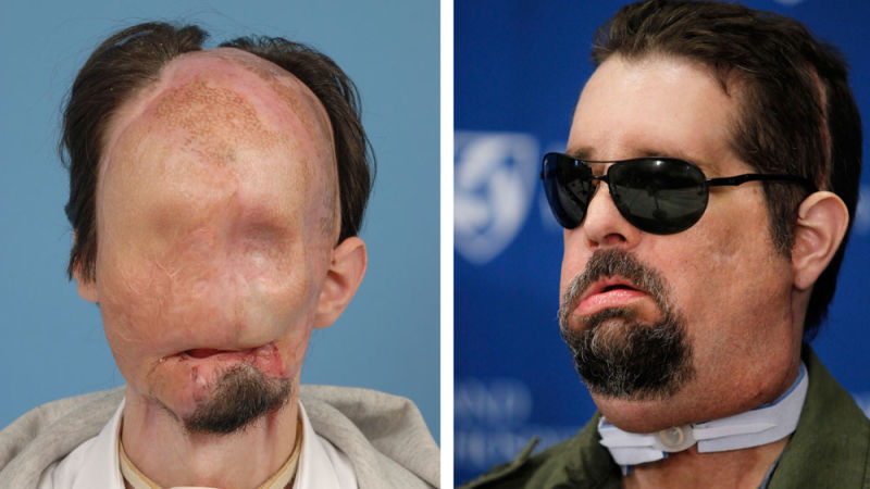 America S First Face Transplant Recipient Looks Pretty Good